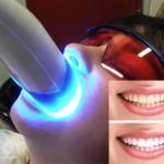 neperoxidove-beleni-zubu